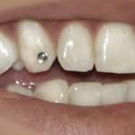 piercing-nos-dentes