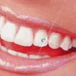 piercing-nos-dentes-2