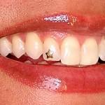 piercing-nos-dentes-3