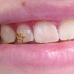 piercing-nos-dentes-5