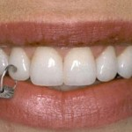 piercing-nos-dentes-7