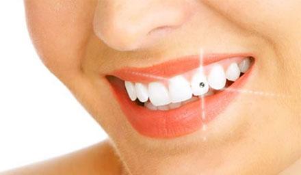piercing-nos-dentes-8